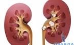 Мочекаменная болезнь симптомы и лечение