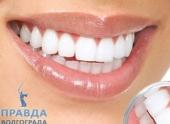 Для чего нужны виниры на зубы?