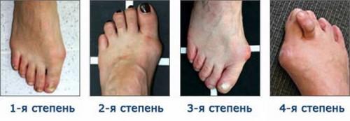 появление косточки на ногах
