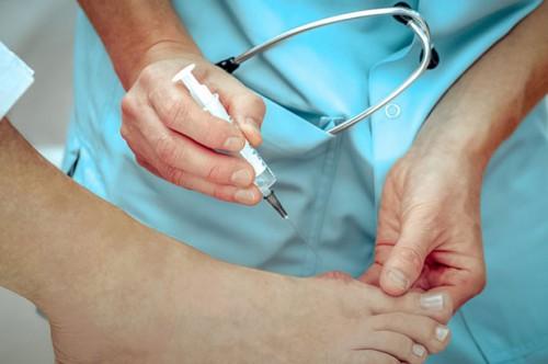 Лазерное удаление косточек на ногах